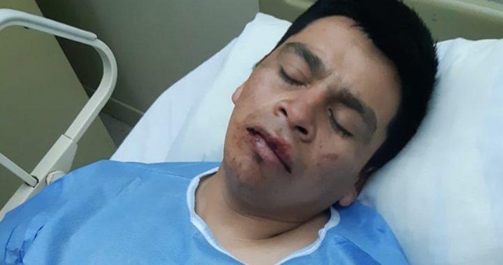Presentan querella por homicidio frustrado contra trabajadores del Fundo Santa Adela de Victoria que habrían propinado golpiza a comuneros mapuche